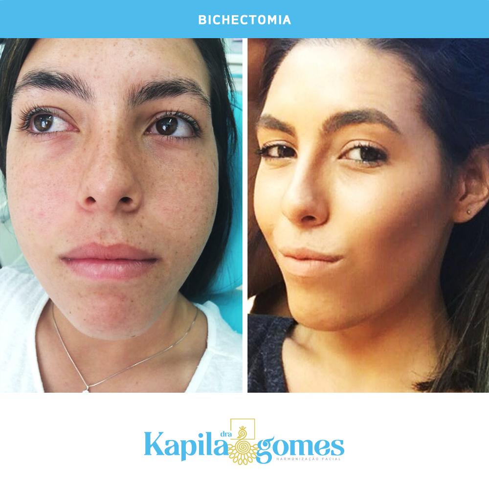 bichectomia_kapila_gomes