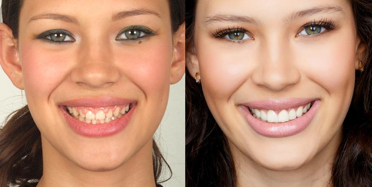 tudo-sobre-lente-de-contato-dental-blog-flavia-carboni